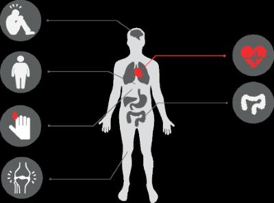 Samsjuklighet vid psoriasis