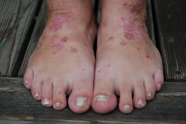 röda utslag på fötterna