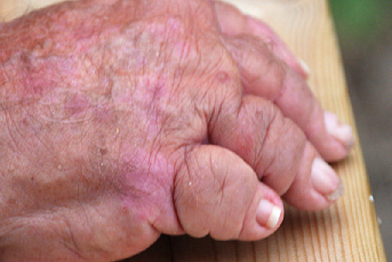 psoriasis i muskelfästen