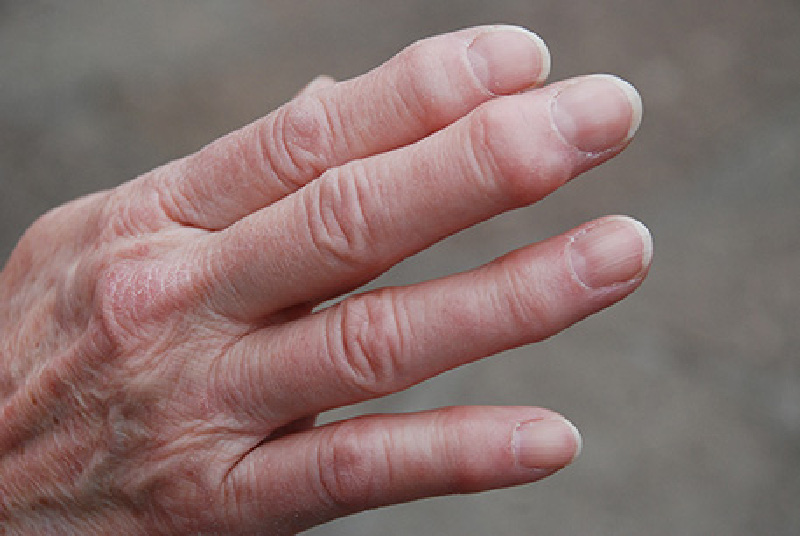 svullna leder fingrar