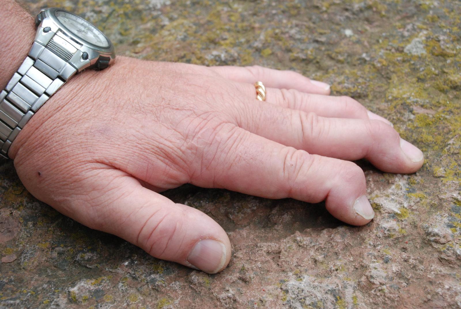 Hand och fingrar med tydlig psoriasisartrit