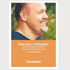 Psoriasis i hårbotten_WEBB